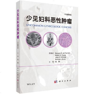 1005少见妇科恶性肿瘤(中文翻译版)