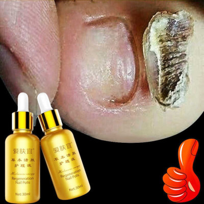 【买2送1】7天去灰指甲专用药 手足部护理 灰指甲亮甲美甲杀防菌修护液